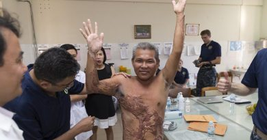 Royal Australian Navy Reserve Medical Officer and Plastic and Reconstructive Surgeon, Commander Ravi Mahajani conducts a pre-surgery consultation on a patient at Khan Hoa General Hospital in Nha Trang, Vietnam, during Exercise Pacific Partnership 2017. The patient could not lift his arm above his shoulder due to excessive scarring caused by severe electrical burns. Photo by Sergeant Ray Vance.